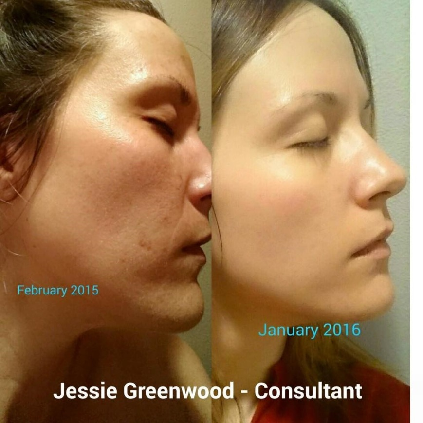 Aging Skin Care