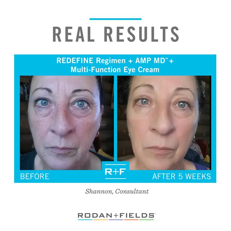 Anti Aging Skin Cream